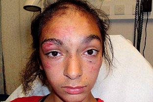 Girl attacked burned and robbed in broad daylight