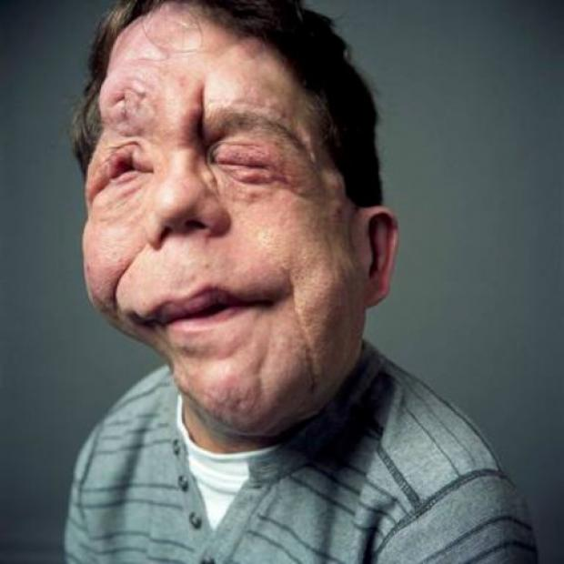 Adam Pearson is doing a charity skydive