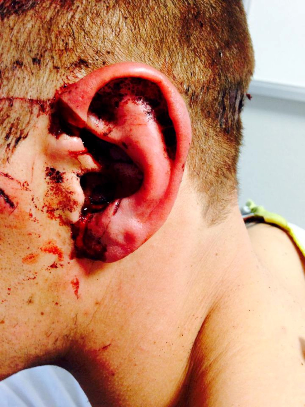 Knife victim 'stabbed' in the head goes on five mile mystery journey